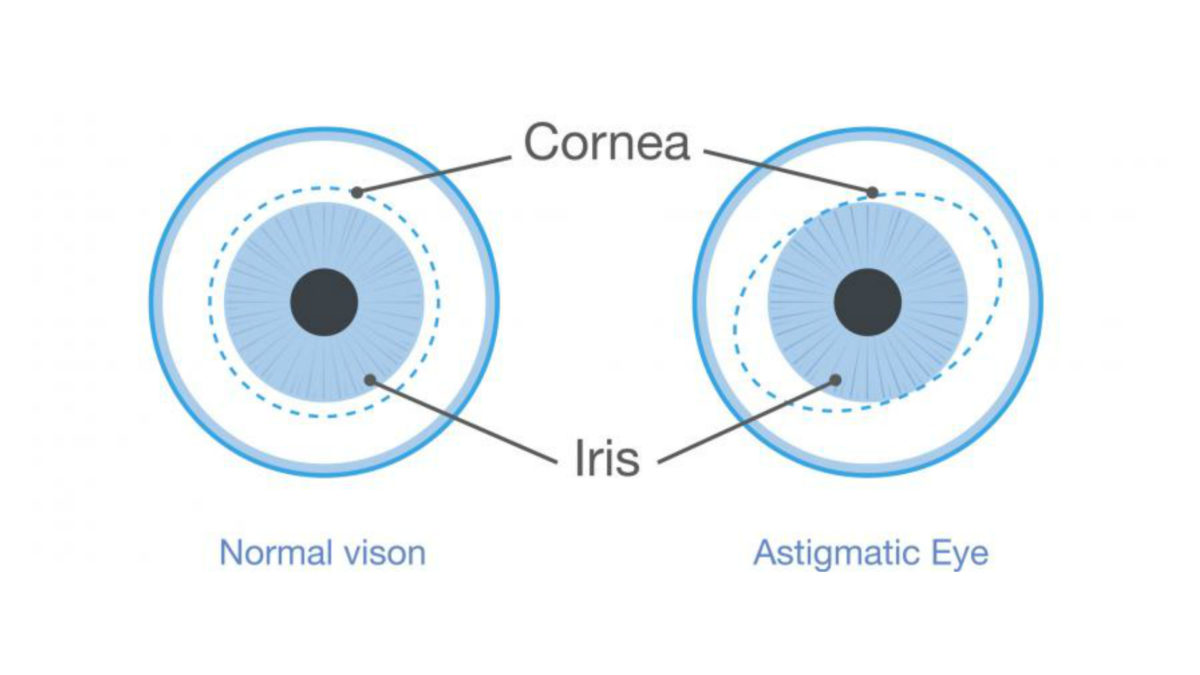 Astigmatism graphic showing difference between normal and astigmatic eye